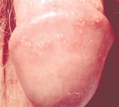 acne spots on penis jpg 1500x1360