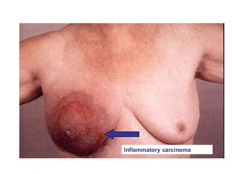 carsinoma breast jpg 638x479
