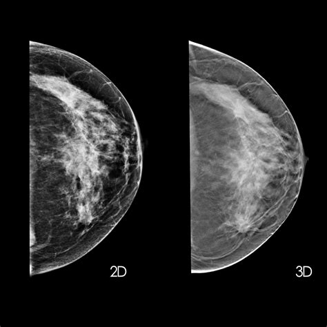 What is a mammogram bc cancer png 1000x1000