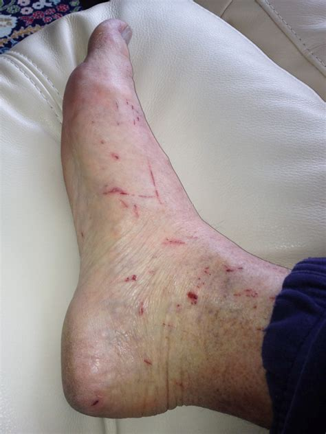 heal cuts on vagina jpg 675x900